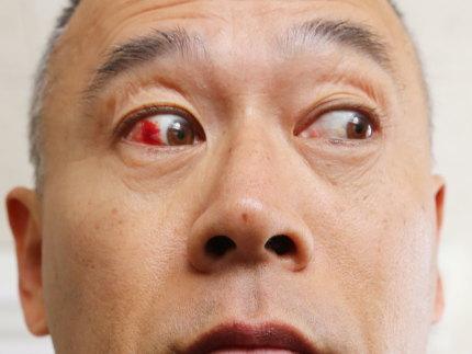 右目が赤く