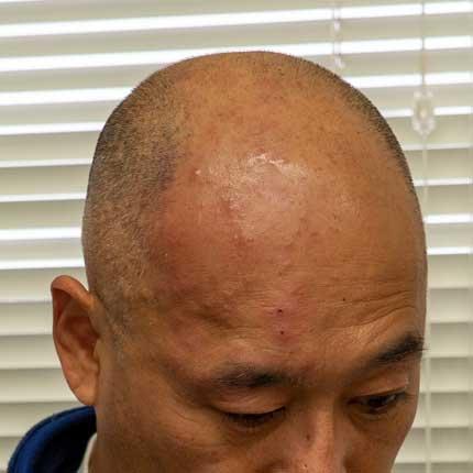 右頭部の帯状疱疹